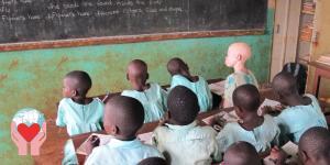 bambino albino in Congo